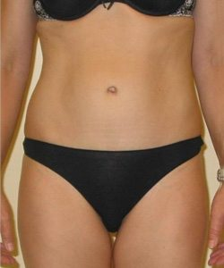 abdominoplasty tummy tuck after