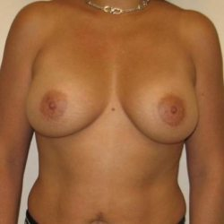 breast augmentation before procedure