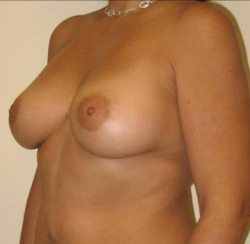 breast augmentation after procedure