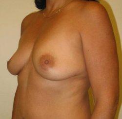 breast augmentation after procedure three quarter view
