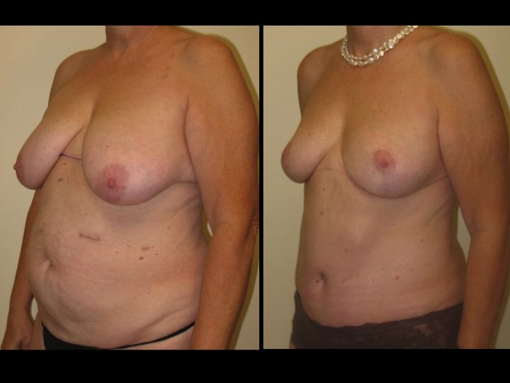 breast augmentation before and after three quarter view