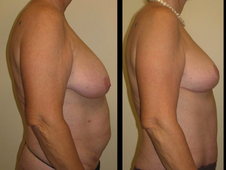 breast augmentation before and after profile view