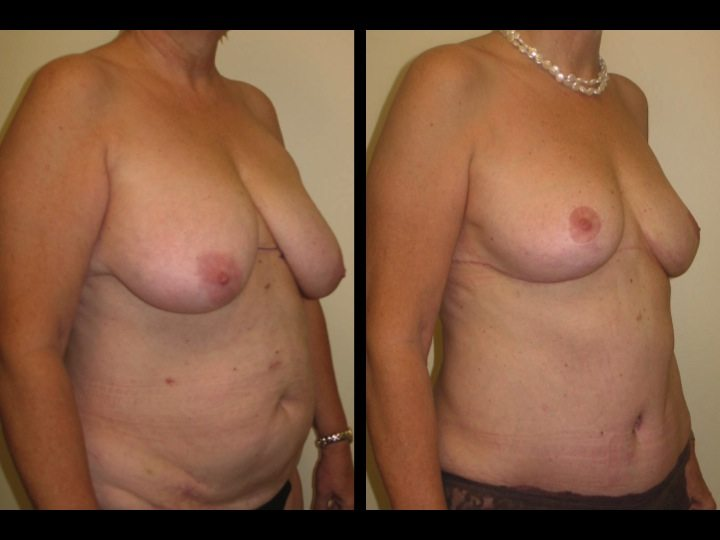 Dr-Joel-Maier-breast-reduction-before-after-right-three-quarters