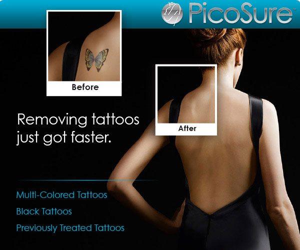Tattoo removal cincinnati ohio