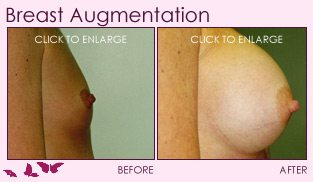 breast augmentation right profile