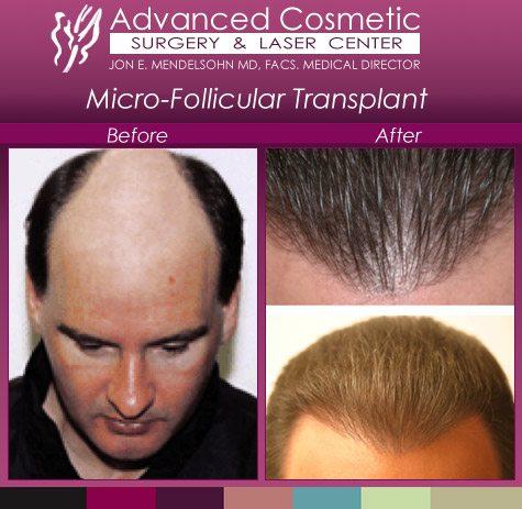micro-follicular transplant