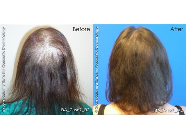 before and after womens hair