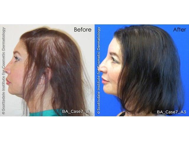 laser hair treatment for women