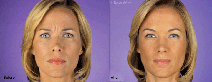 botox female before and after
