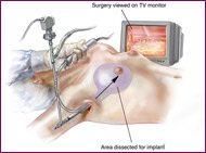 breast augmentation diagram procedure