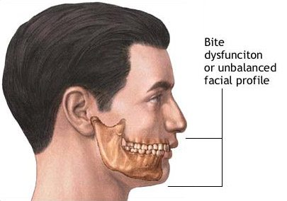 mens chin implant 2
