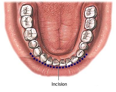 chin implant mouth view