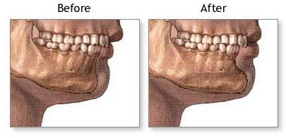 chin implant facial structure diagram cropped