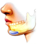 chin implant artistic rendering