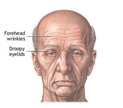 forehead_series_1