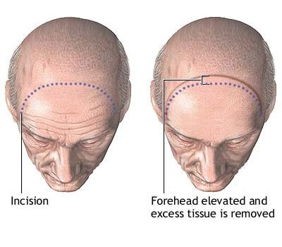 forehead_series_2