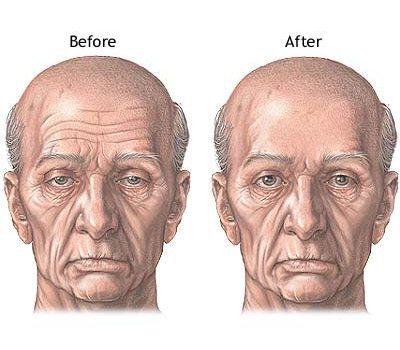 forehead_series_3