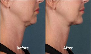 kybella before after