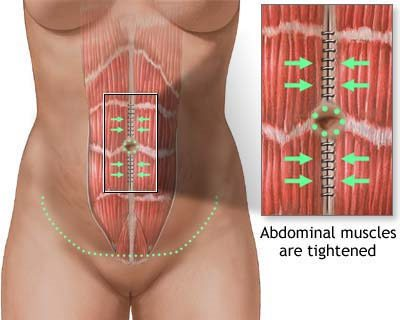abdominal muscles tummy tuck