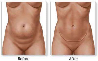 tummy tuck belly
