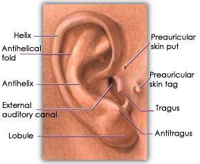 otoplasty ear