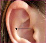 otoplasty ear distance