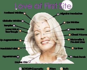 Botox-Filler-Nonsurgical-Facelift-Liquid-facelift-best-plastic-surgeon-female-model