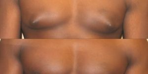 Gynecomastia up close