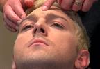 Men & Botox