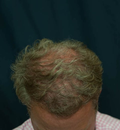 After hair transplant smart graft FUE Top