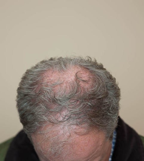 before hair transplant top view