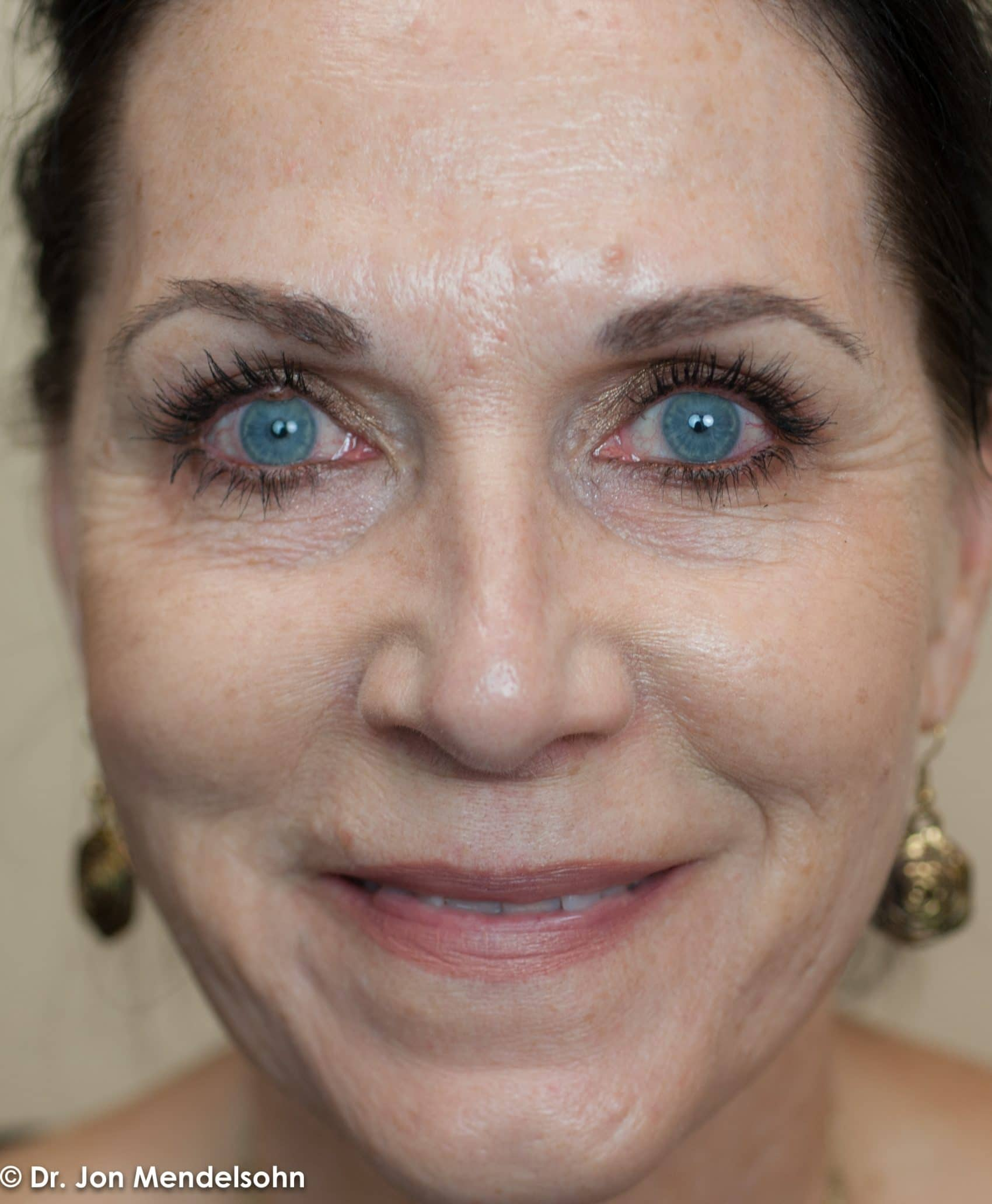 Upper-blepharoplasty-eyelid-surgery-cincinnati-dr-jon-mendelsohn-best-eyelid-surgery-plastic-surgery-realself-truseselfies-frontal-after-Drake-Robin-7474-2