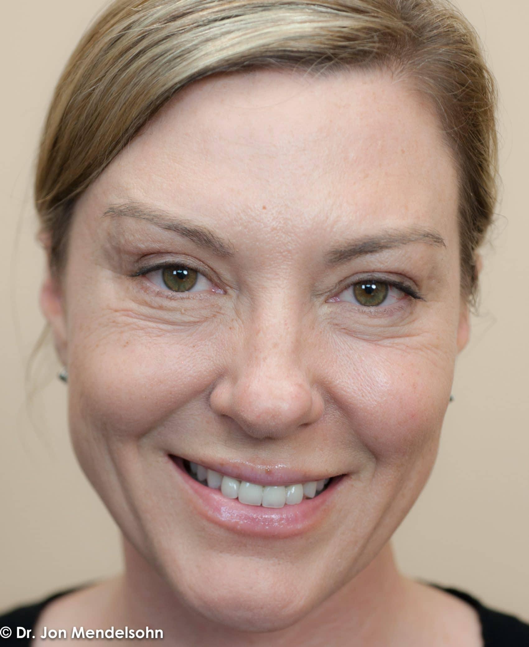 Upper-blepharoplasty-eyelid-surgery-cincinnati-dr-jon-mendelsohn-best-eyelid-surgery-plastic-surgery-realself-truseselfies-frontal-after-Krishock_Laurissa-15820-2