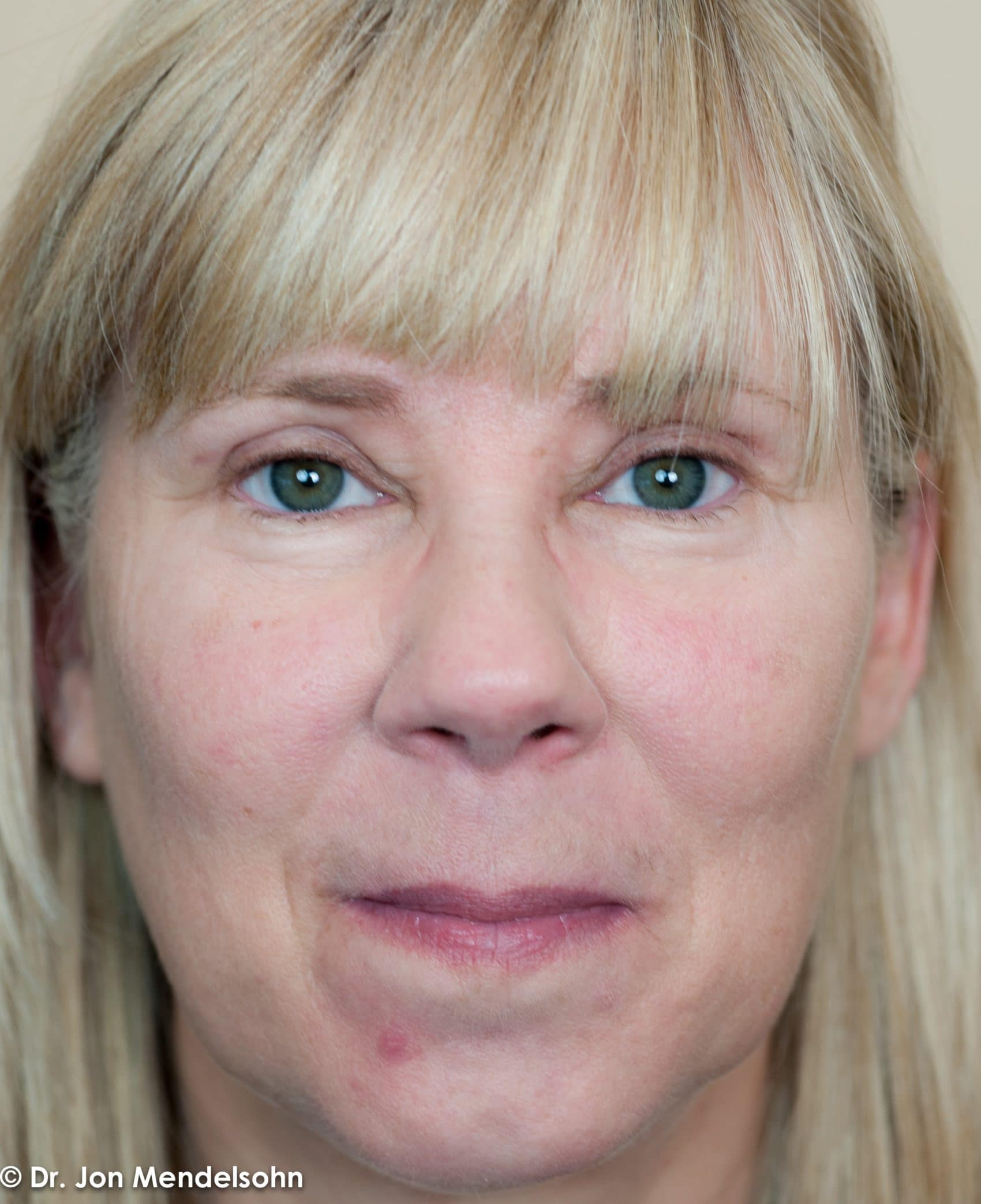 Upper-blepharoplasty-eyelid-surgery-cincinnati-dr-jon-mendelsohn-best-eyelid-surgery-plastic-surgery-realself-truseselfies-frontal-after-Margerum_Michelle-900-2