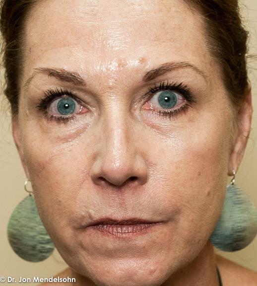 Upper-blepharoplasty-eyelid-surgery-cincinnati-dr-jon-mendelsohn-best-eyelid-surgery-plastic-surgery-realself-truseselfies-frontal-before-20160923-Drake_Robin-34836-2