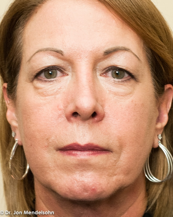 Upper-blepharoplasty-eyelid-surgery-cincinnati-dr-jon-mendelsohn-best-eyelid-surgery-plastic-surgery-realself-truseselfies-frontal-before-20160923-McDaniel_Jane-34779-2
