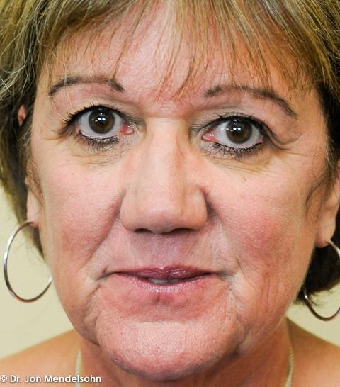 Upper-blepharoplasty-eyelid-surgery-cincinnati-dr-jon-mendelsohn-best-eyelid-surgery-plastic-surgery-realself-truseselfies-frontal-before-20160926-Grobe_Vicki-34965-2