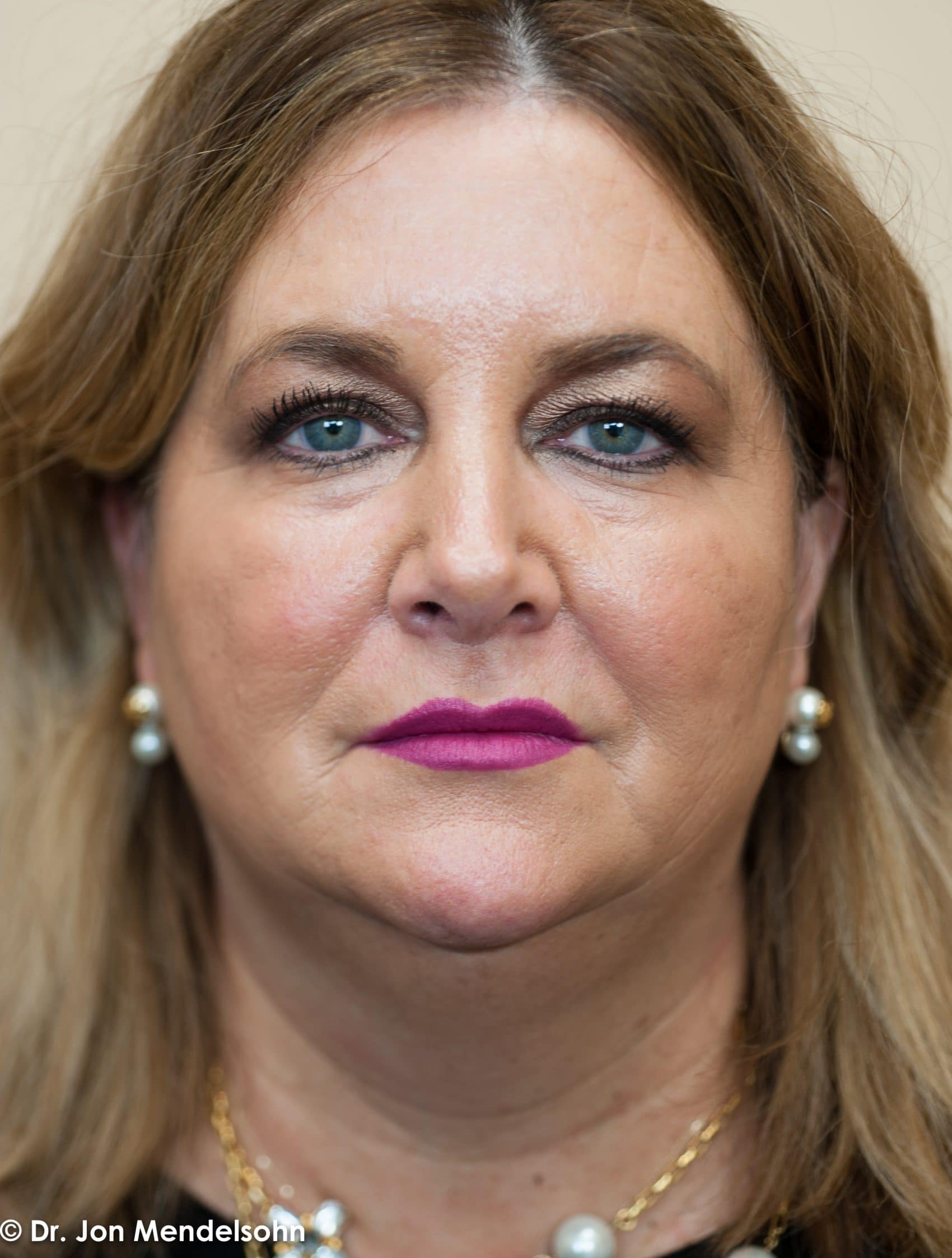 Upper-blepharoplasty-eyelid-surgery-cincinnati-dr-jon-mendelsohn-best-eyelid-surgery-plastic-surgery-realself-truseselfies-frontal-before-Burke_Jill-13995-2