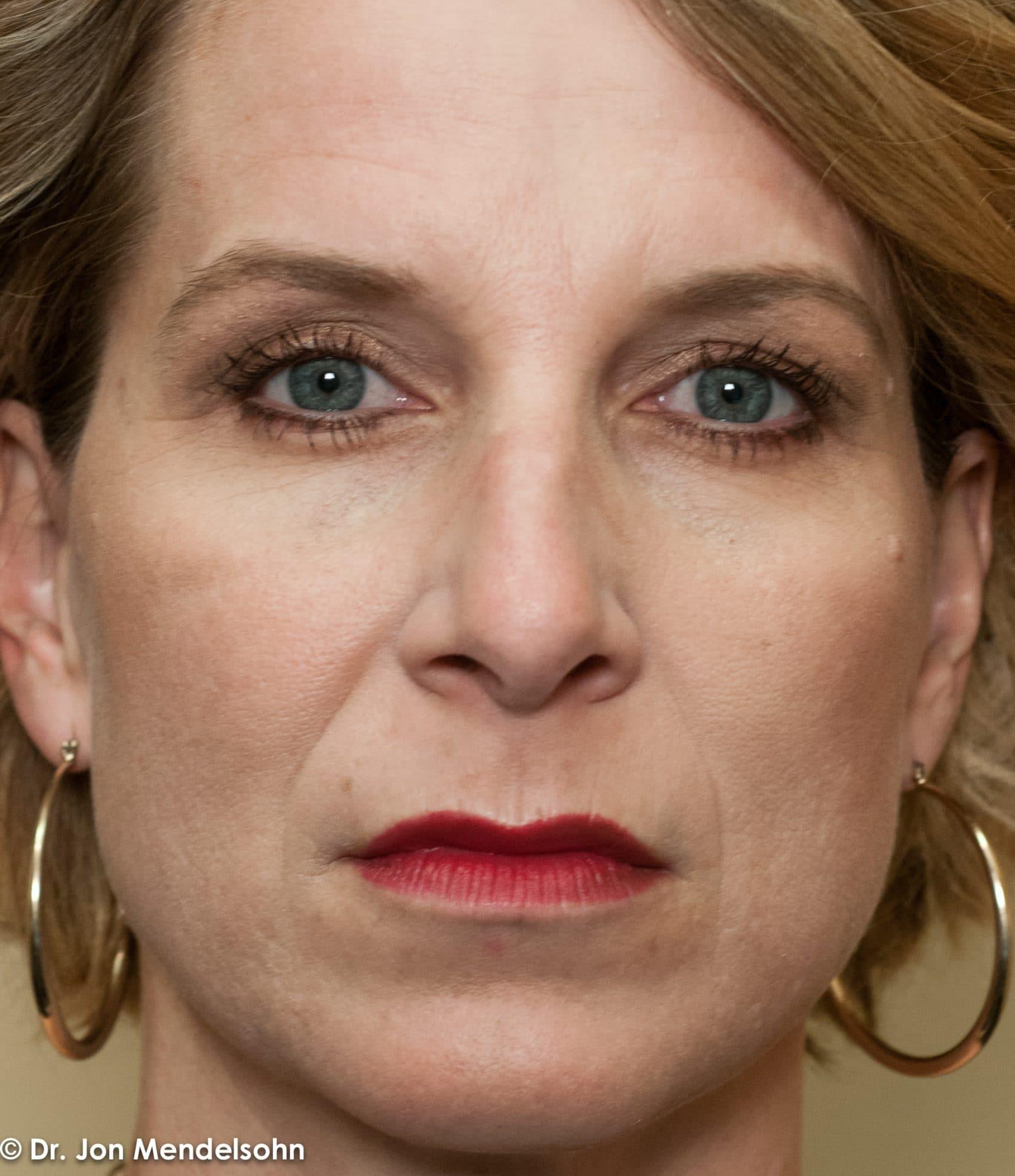 Upper-blepharoplasty-eyelid-surgery-cincinnati-dr-jon-mendelsohn-best-eyelid-surgery-plastic-surgery-realself-truseselfies-frontal-before-Kreimer_Jeanine-34813-2