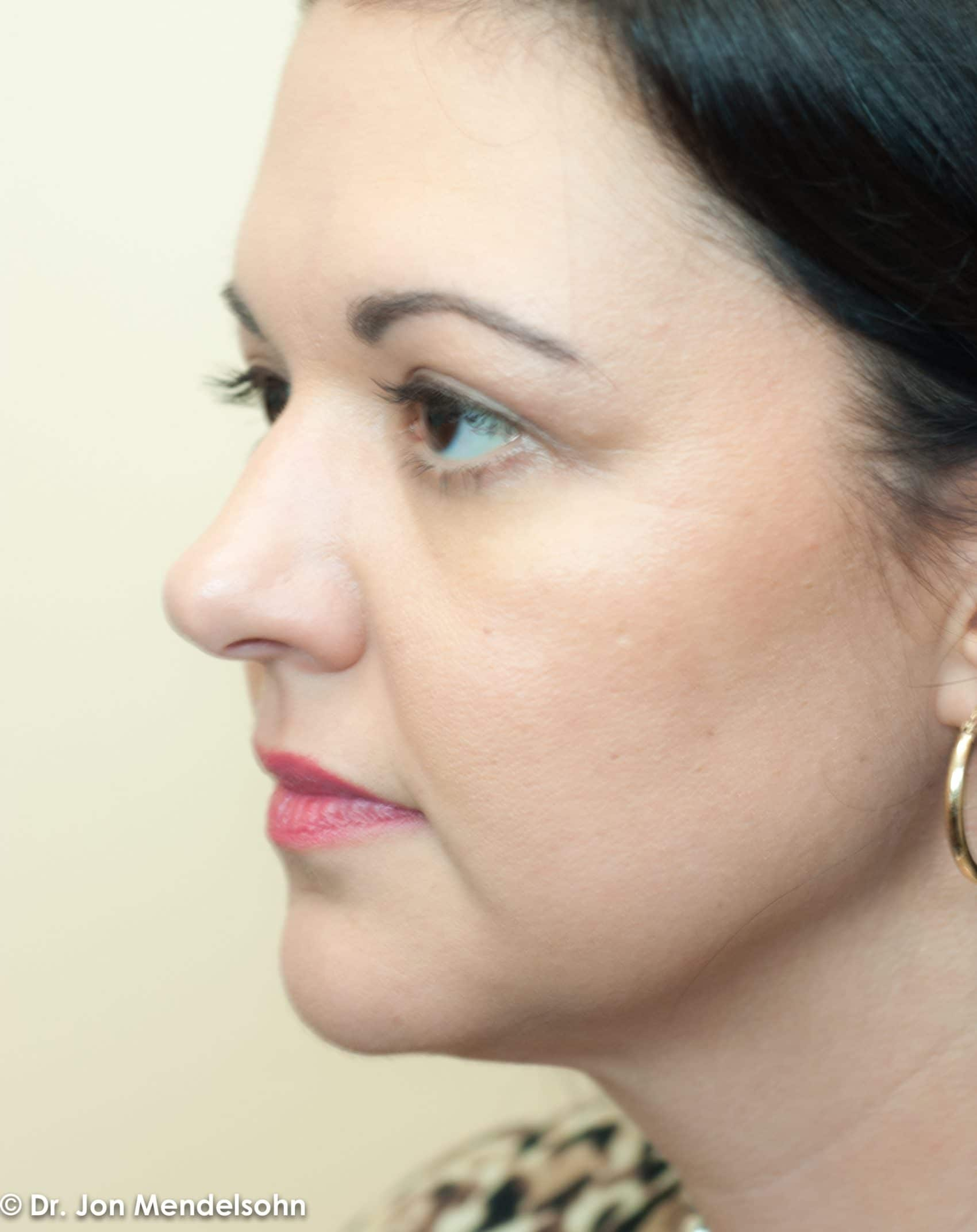 Upper-blepharoplasty-eyelid-surgery-cincinnati-dr-jon-mendelsohn-best-eyelid-surgery-plastic-surgery-realself-truseselfies-three-quarter-left-after-Mahan_Crystal-3924-2