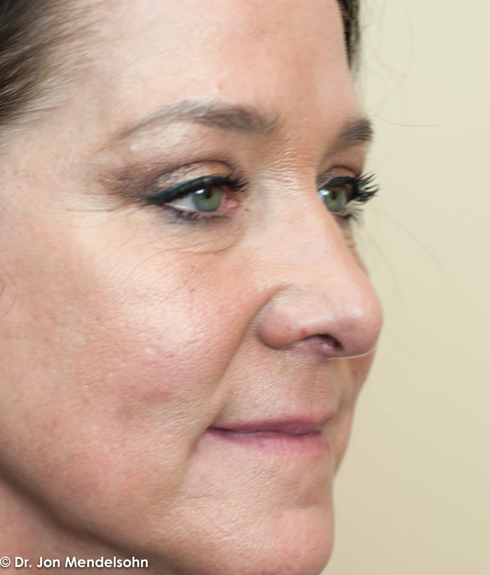 Upper-blepharoplasty-eyelid-surgery-cincinnati-dr-jon-mendelsohn-best-eyelid-surgery-plastic-surgery-realself-truseselfies-three-quarter-right-after-Cross-Angie-7488-2