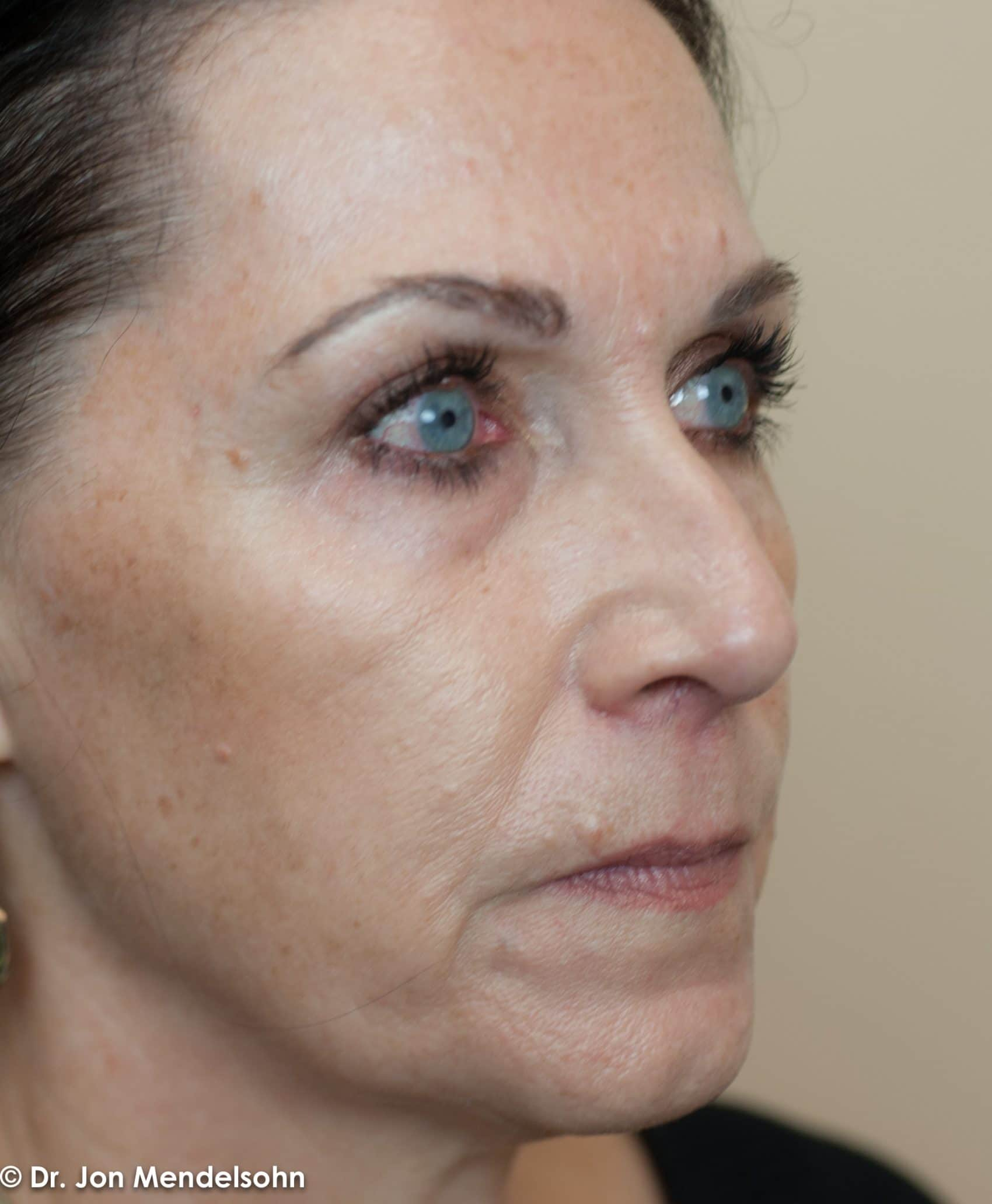 Upper-blepharoplasty-eyelid-surgery-cincinnati-dr-jon-mendelsohn-best-eyelid-surgery-plastic-surgery-realself-truseselfies-three-quarter-right-after-Drake-Robin-7477-2