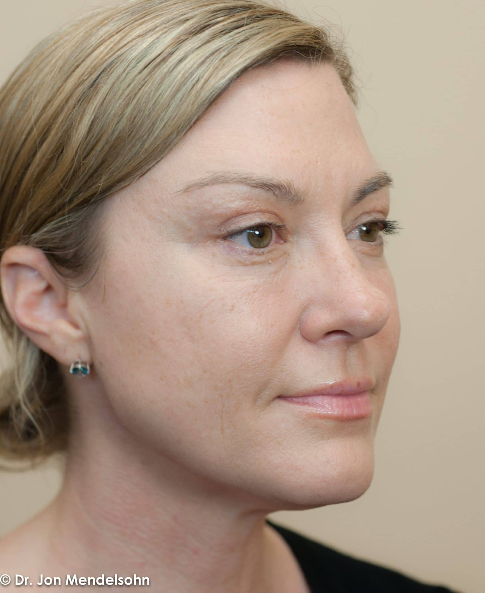 Upper-blepharoplasty-eyelid-surgery-cincinnati-dr-jon-mendelsohn-best-eyelid-surgery-plastic-surgery-realself-truseselfies-three-quarter-right-after-Krishock_Laurissa-15826-2