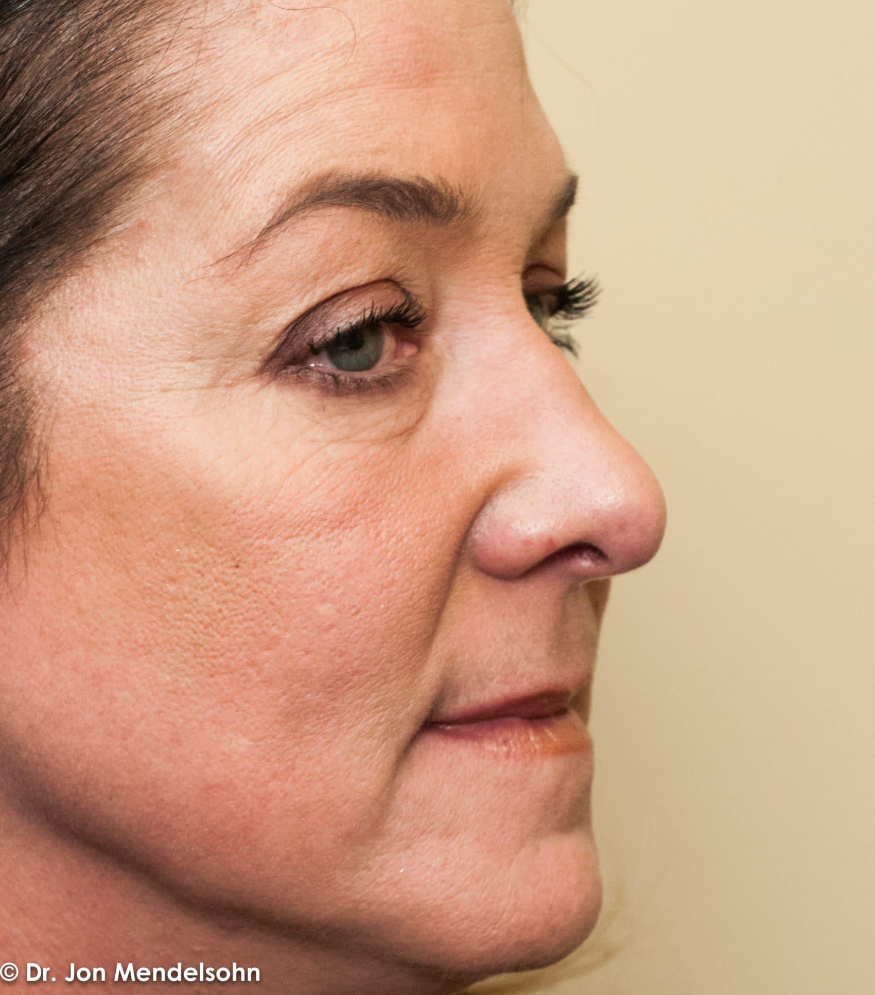 Upper-blepharoplasty-eyelid-surgery-cincinnati-dr-jon-mendelsohn-best-eyelid-surgery-plastic-surgery-realself-truseselfies-three-quarter-right-before-Cross_Angie-34826-2
