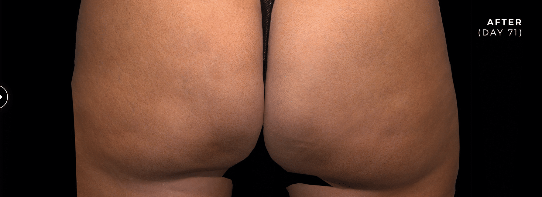 after cellulite photo