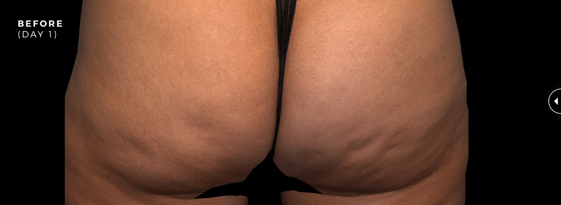 before qwo cellulite image